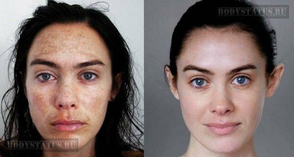 Ретиноловый пилинг лица: этапы проведения, механизм действия, фото до и после