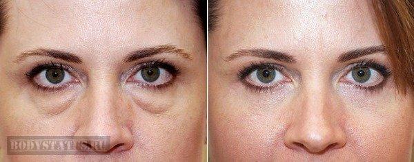 Как убрать круги под глазами? Причины, домашние и народные средства, косметологические процедуры и макияж